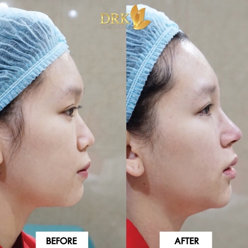 Promotion DRK Beauty Clinic Get 7000 Discount for Nose Silicone P41